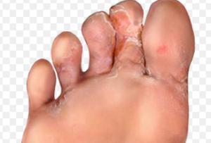 грибковые заболевания кожи фото
