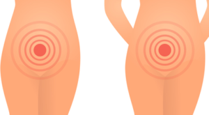 Чем снять зуд при молочнице во время беременности