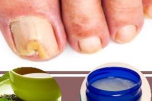 Лечение грибка ногтей уксусом в растущую луну