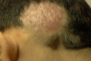 фавус волосистой части головы фото