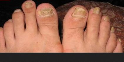 Фото запущенного грибка ногтей на ногах