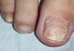 рубромикоз ногтей фото