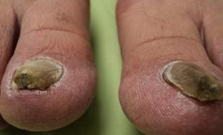 рубромикоз стоп и ногтей фото