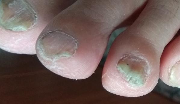 Чем лечат ногтевой грибок на ногах