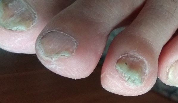 Приснился сон грибок на ногте