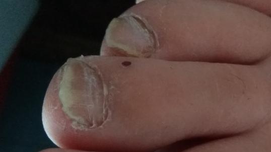 Перекись водорода при грибке на ногтях