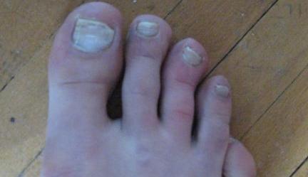 Как вылечить грибок на ногах ногтях таблетками