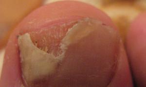 Онихомикоз ногтей: фото, причины, лечение, Грибковые заболевания