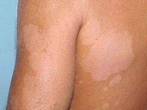 Санаторий лечение грибка ногтей