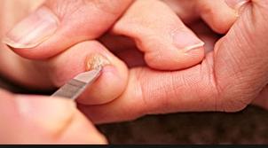 Как обработать обувь после грибка ногтей - О грибке ногтей