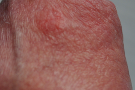 Раздражение и шелушение кожи на головке пениса