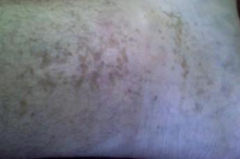 Фото дерматита у детей на теле
