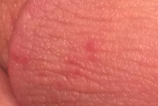 Губы полового члена красные