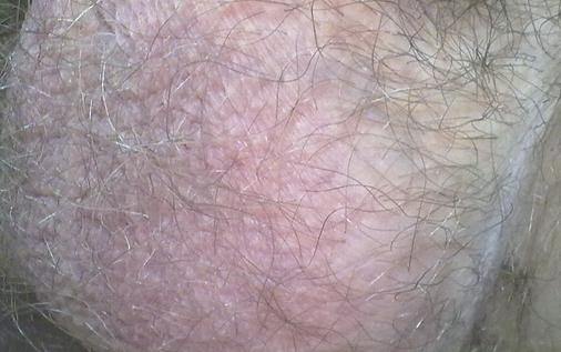 шелушится кожа на яйцах