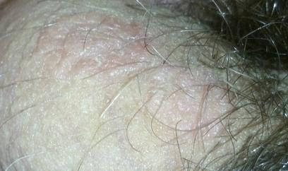 Шелушение кожа член
