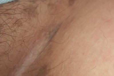 Коричневые пятна на теле у ребенка фото