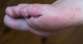 Раны между пальцами ног — pic 11