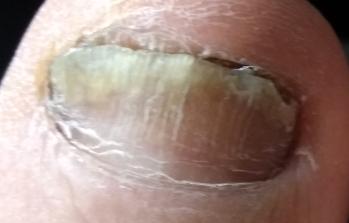 Средства для удаления пораженного ногтя дома