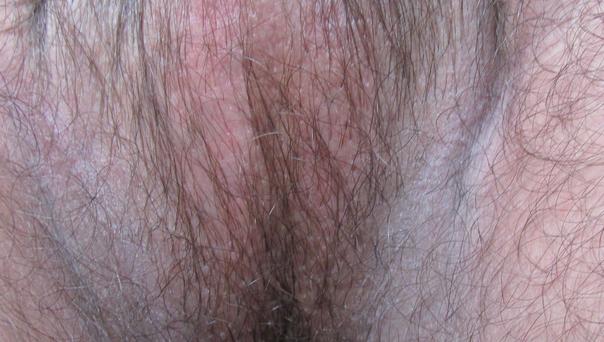 Болят лимфоузлы под мышкой причины и лечение
