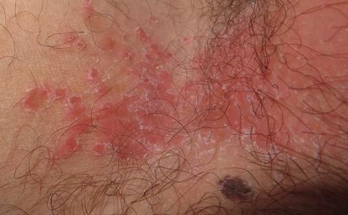 паховый грибок у мужчин лечение фото