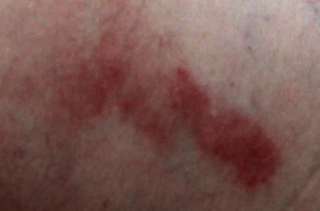 Красное пятно с пупырышками на теле у ребенка фото