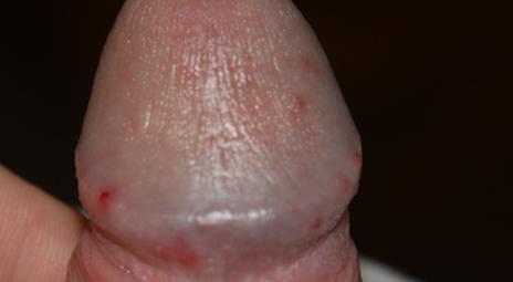Красная болячка на стволе пениса