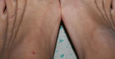 Как выглядит псориаз на ногах