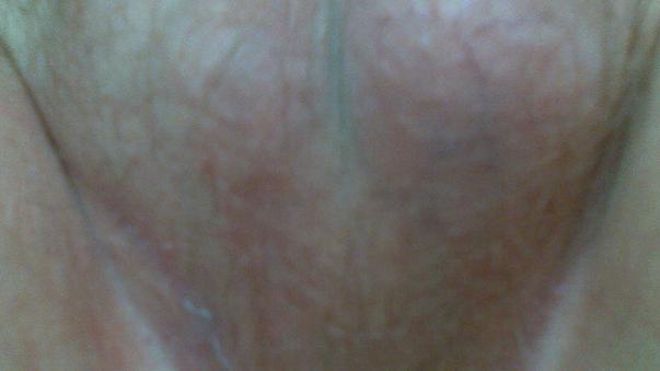 Эритразма фото у мужчин лечение 36