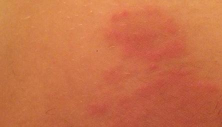 Эритразма фото у мужчин лечение 2