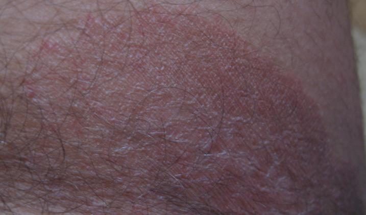 Эритразма фото у мужчин лечение 1