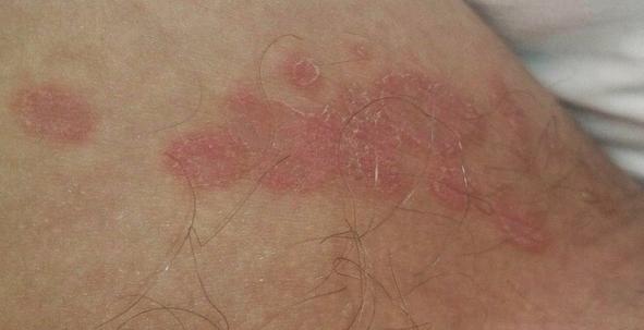 Эритразма фото у мужчин лечение 38