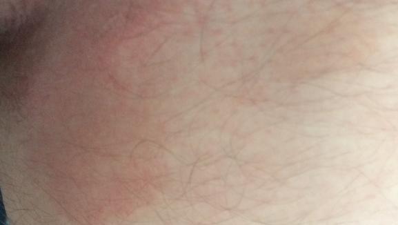 Эритразма фото у мужчин лечение 4
