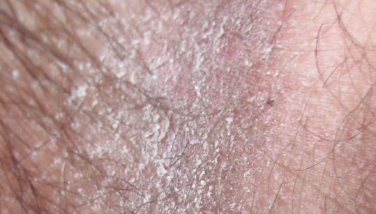 Эритразма фото у мужчин лечение 5