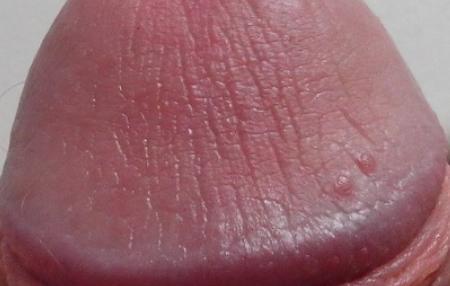На пенисе с обратной стороны белые угри