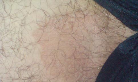 шелушится и чешется кожа на мошонке