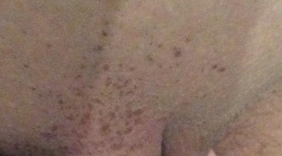 фото аллергия в паху