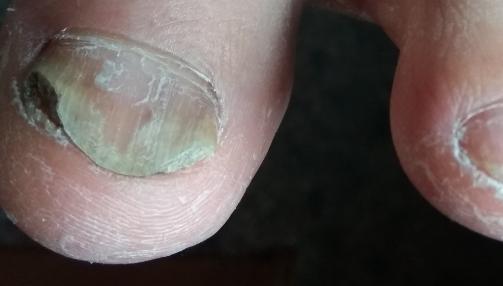 дешевая мазь от грибка ногтей